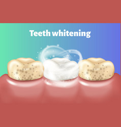 Teeth whitening concept dirty tooth and other is vector
