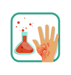 Chemical burn of third-degree hand with damaged vector