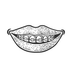 dental braces smile sketch vector image