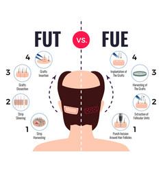 Hair transplantation fut vs fue vector