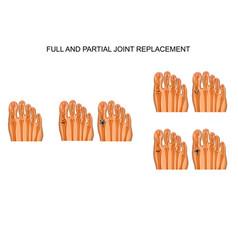 Arthroplasty of the big toe joint vector