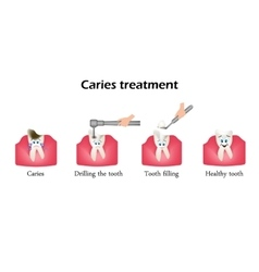 Treatment caries drilling a tooth sealing of vector