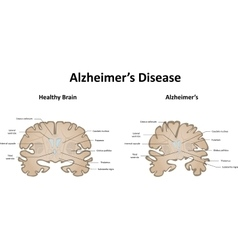 Alzheimers Disease of the Brain and Motor System vector