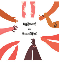 Different is beautiful diverse group people arms vector