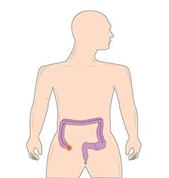 Appendicitis vector