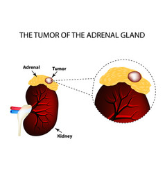 A tumor of the adrenal gland structure of the vector