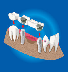 Isometric prosthetic dentistry concept vector