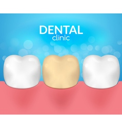 Dental desease clinic concept tooth healthcare vector