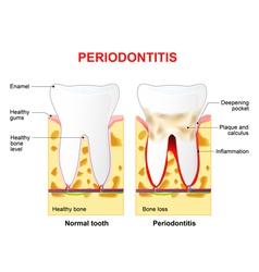 Periodontitis vector