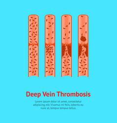 cartoon deep vein thrombosis card poster vector image