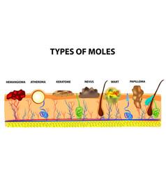 Types of moles nevus pigment spot papilloma vector