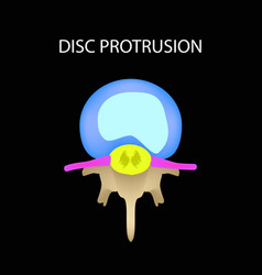 disc protrusion top view spine infographics on a vector image