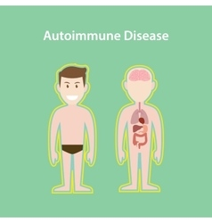Autoimmune disease system with vector