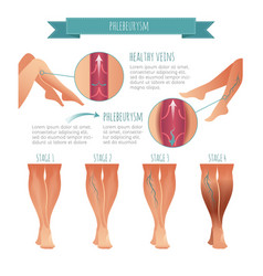 phlebology infographic stage of vein vector image