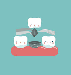 Tooth implant teeth and tooth concept of dental vector