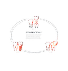 teeth procedure - crown veneer implant vector image