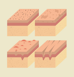 Layers of skin types vector