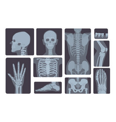 realistic x-ray shots collection human body hand vector image