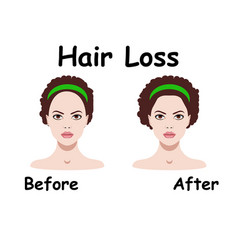 for hair loss treament vector image