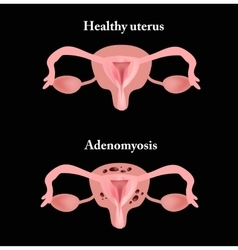 Endometriosis The structure of the pelvic organs vector