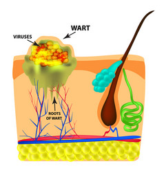The structure of the wart the structure of the vector