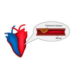 atherosclerosis of the heart angina pectoris vector image