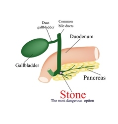 Stone pancreatic bile duct The most dangerous vector