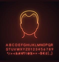 Hair loss neon light icon vector