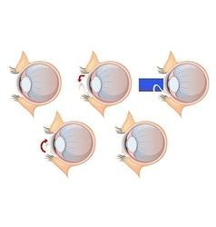 Laser eye correction vector image