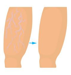 varicose veins operation icon cartoon style vector image
