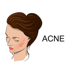 acne vector image