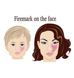 Firemark on the face vector