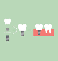 Structure of the dental implant with all parts vector