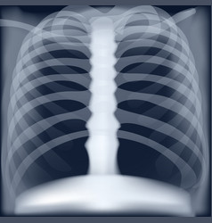 Xray medical image chest vector