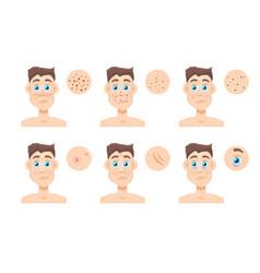 men skin problem acne men vector image