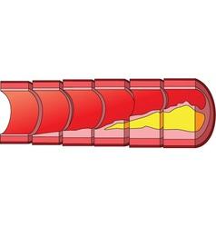 Cholesterol vector