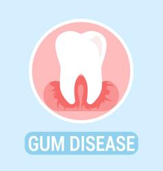 Gums disease dentistry flat banner concept vector