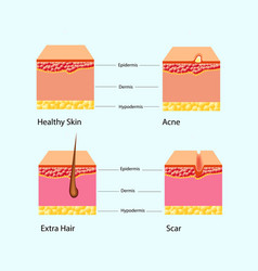 Types skin problems vector