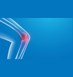 3d knee painful x-ray joint pains vector