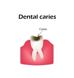 Deep tooth decay on isolated vector