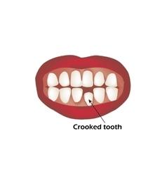 Crooked teeth Orthodontics Infographics vector image