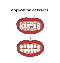 The use braces crooked teeth orthodontics vector