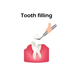 Treatment of caries Sealing of the tooth vector