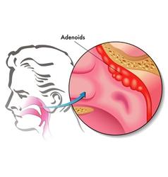 Adenoids vector