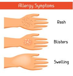 Allergy symptoms for medical vector