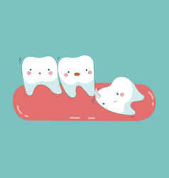 Wisdom tooth push other tooth teeth and tooth vector