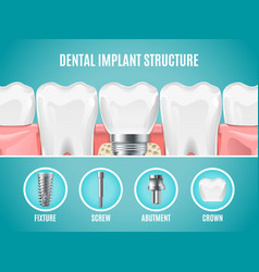 Dental implant structure reallistic tooth vector
