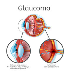 glaucoma medical scheme with explanations vector image