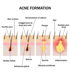 Formation of acne vector image vector image