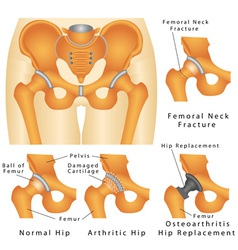 Hip joint vector image